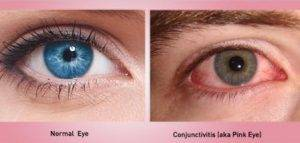 pink eye, optometrist, milton, on